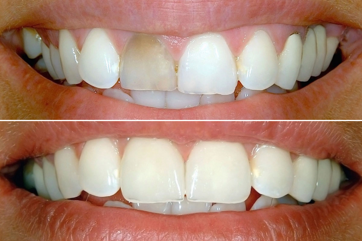 non vital tooth whitening